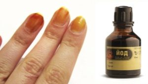 Nail iodine: from effect to use