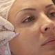 Faciale mesotherapie: wat is het en hoe wordt het gedaan?