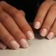 Kenmerken van de verlengingsprocedure voor korte nagels