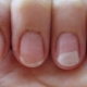 Allergy to gel polish: causes, symptoms and methods of treatment